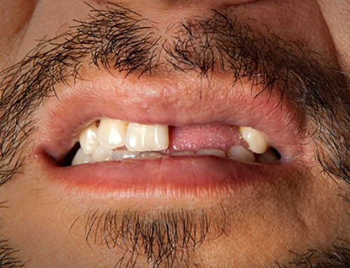 New drug to regenerate lost teeth